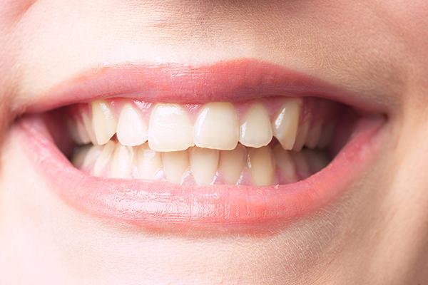患者様に合う入れ歯をご提案